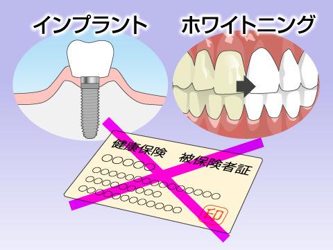 歯の治療費のしくみ