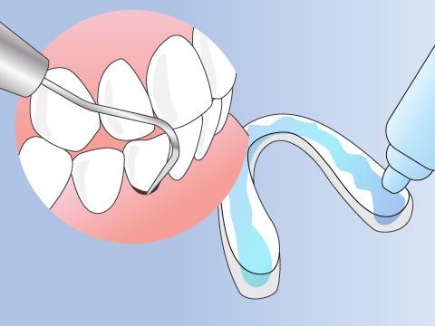 予防歯科で行なわれること