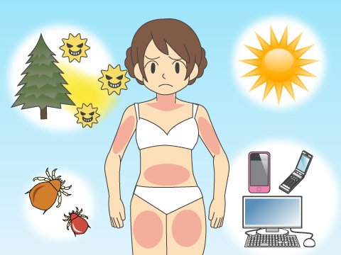 花粉症の基礎知識