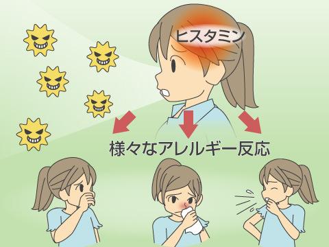 花粉症が起きるしくみ