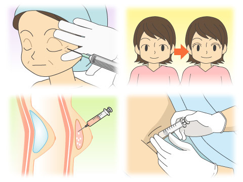 人気の美容外科治療