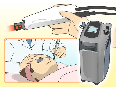 医療用レーザーを用いる方法