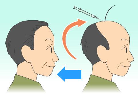 植毛などの外科的治療法