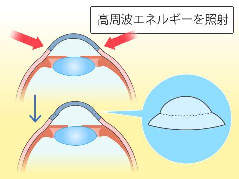 伝導性角膜形成術(CK)