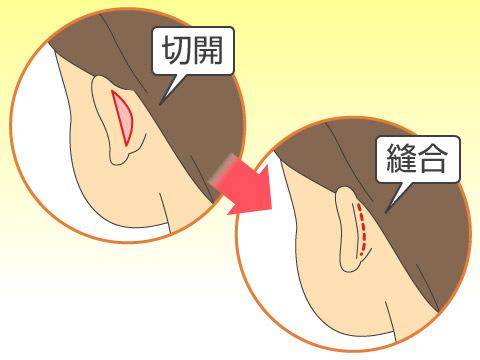 たち耳の矯正方法