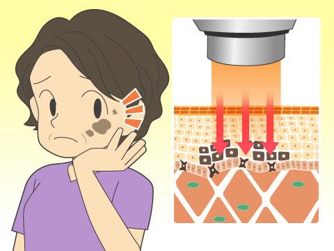 肌のしみを取るレーザー治療