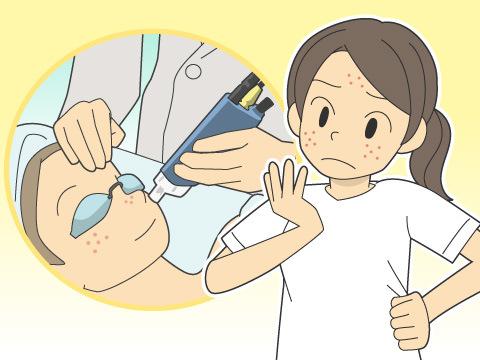 ニキビ跡を取るレーザー治療