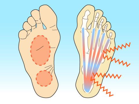 足底筋(腱)膜炎