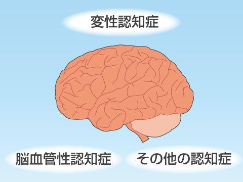 認知症は病原など人によって様々な種類がある