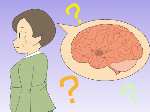 変性性認知症