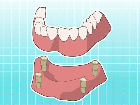 アタッチメント義歯(アタッチメントギシ)