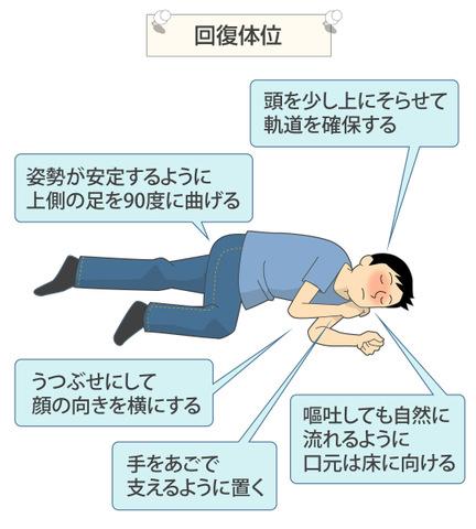症状 中毒 急性 アルコール