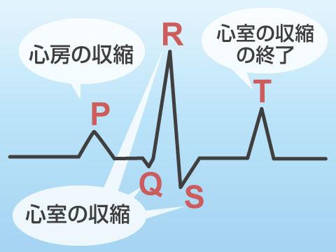 心電図検査の波形