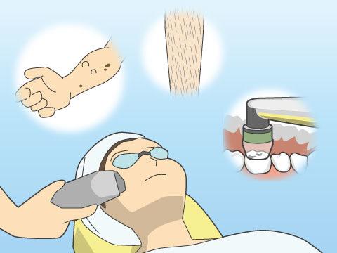 レーザー治療の利用シーン