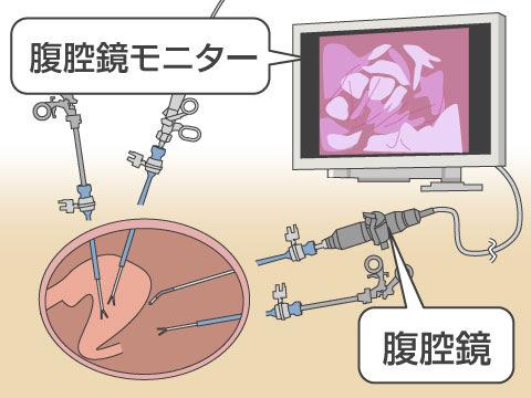 治療機器の進歩