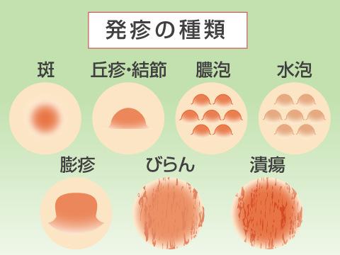 発疹の症状、種類