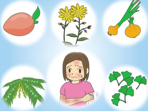 アレルギー性接触皮膚炎を起こしやすい植物